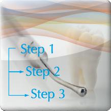 歯科診療の流れ